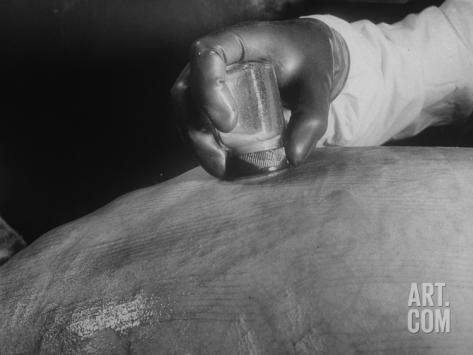 scientist-scraping-skin-of-calf-for-use-in-production-of-smallpox-vaccine_i-G-60-6046-MVBD100Z.jpg